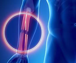 bone fracture xray