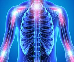 fybromyalgia points on the body